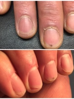 E Manicure 4